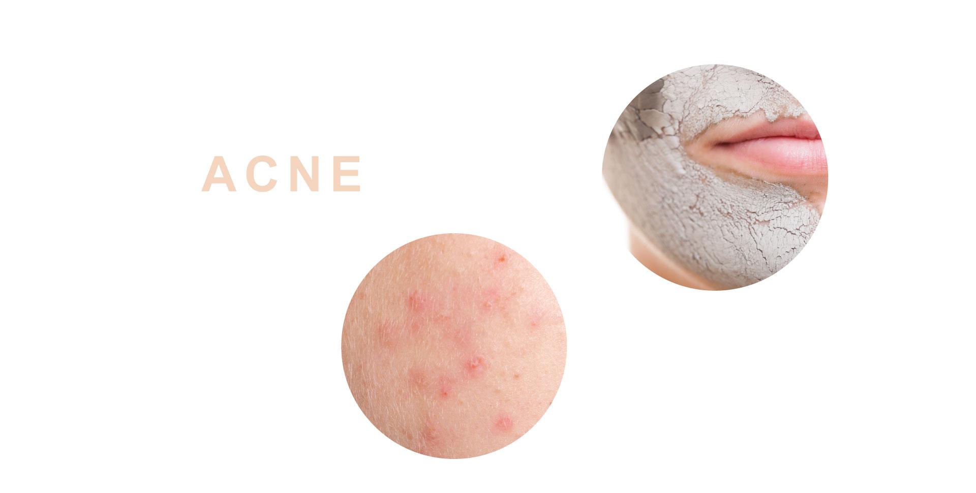acne-behandeling-schoonheidsspecialiste-tessenderlo-skincare-isabelle