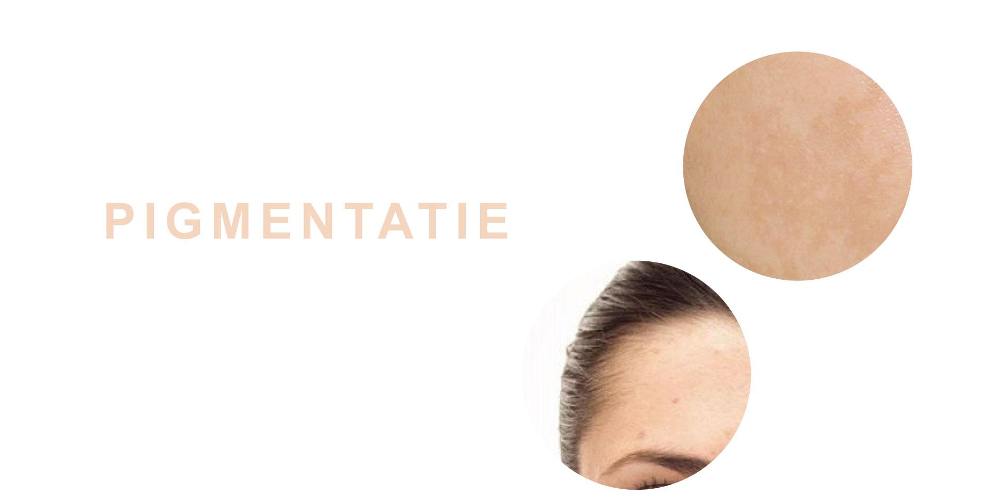pigmentatie-behandeling-egale-huid-schoonheidsspecialiste-tessenderlo