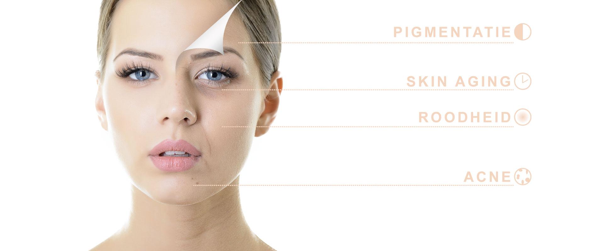 skincare isabelle-huidverbetering-huidverjonging-acne-antiageing-roodheid-pigmentatie-tessenderlo